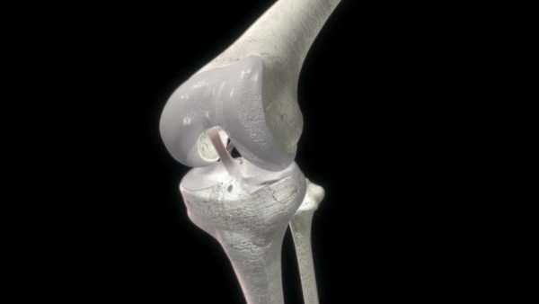 Animation of a human knee joint. The knee is the largest joint in the human body Royalty-free stock video
