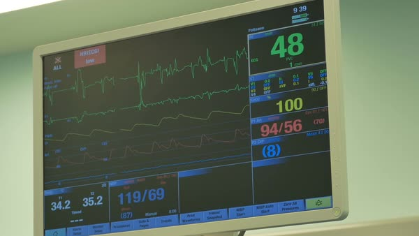 Heart monitor display in the operating theather. Royalty-free stock video