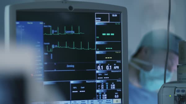 Shot of ECG monitor in operating room during surgical operation Royalty-free stock video