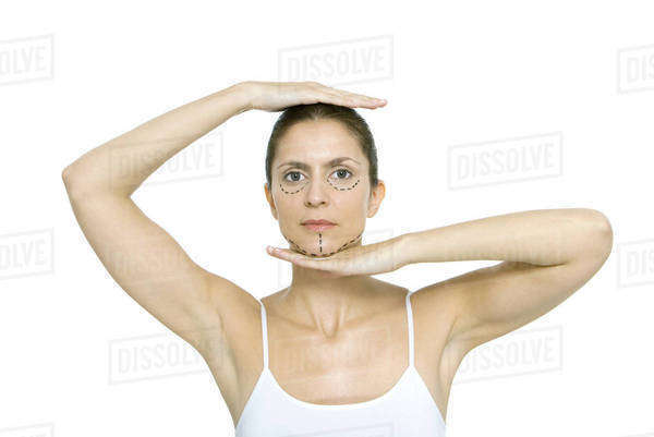 Woman with plastic surgery markings on face, framing head with hands, looking at camera Royalty-free stock photo